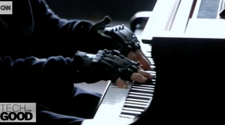 Pianist kan weer spelen dankzij handschoenen afbeelding nieuwsbericht