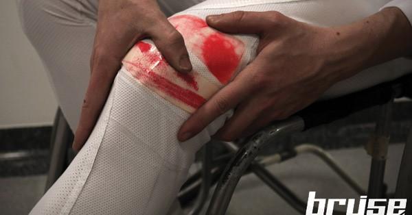 Dit slimme pak verkleurt als je een blessure oploopt (en dat niet kunt voelen) afbeelding nieuwsbericht