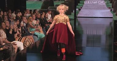 Afbeelding Model Daisy-May met protheses op de catwalk