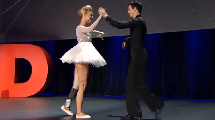 Gabi maakt zonder probleem een plié op haar dansprothese met spitzen afbeelding nieuwsbericht